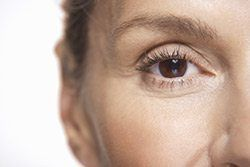 What are Dynamic Wrinkles?