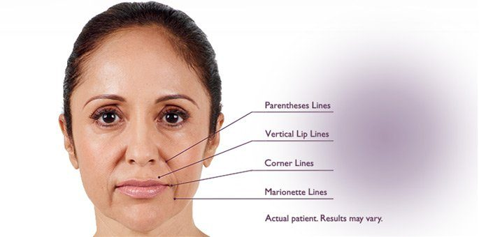 Juvederm Injections in Scottsdale